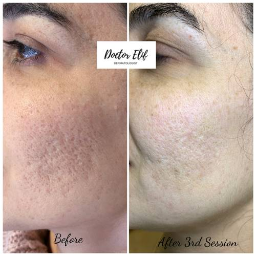 ACNE AND ACNE SCAR TREATMENT before after