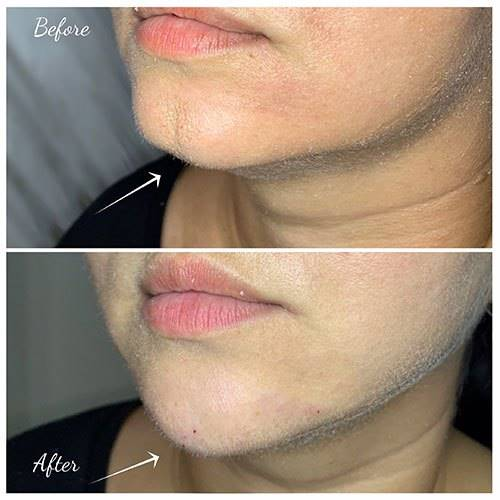 CHIN FILLER before after