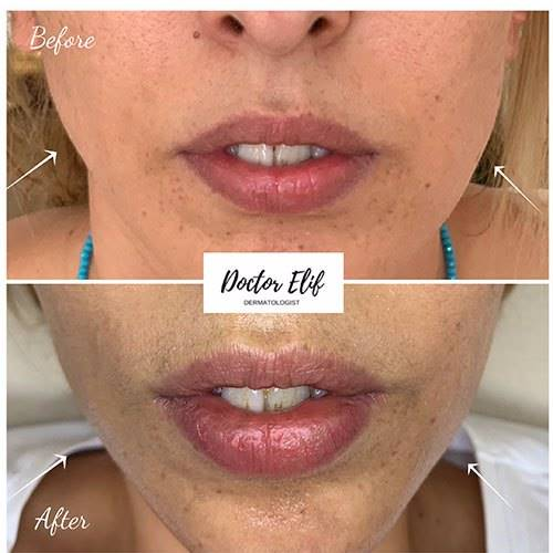 FACESLIMMING / BRUXISM before after