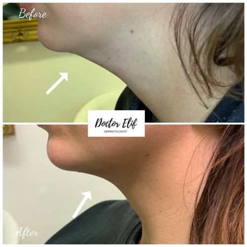 Fat Dissolving Injections before after