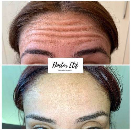 Forehead / Frown Lines / Crows Feet before after