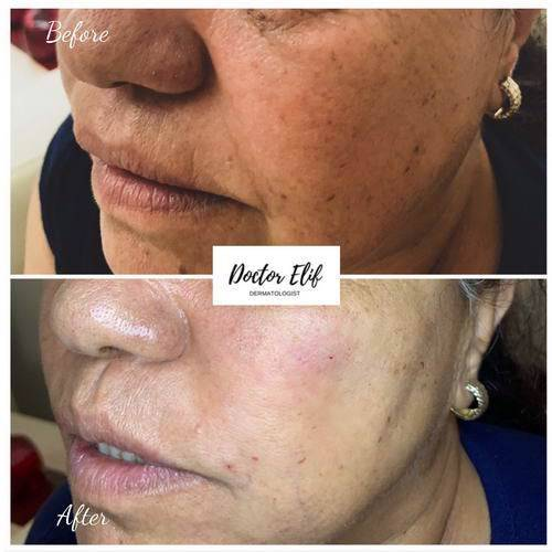 HYPERPIGMENTATION before after