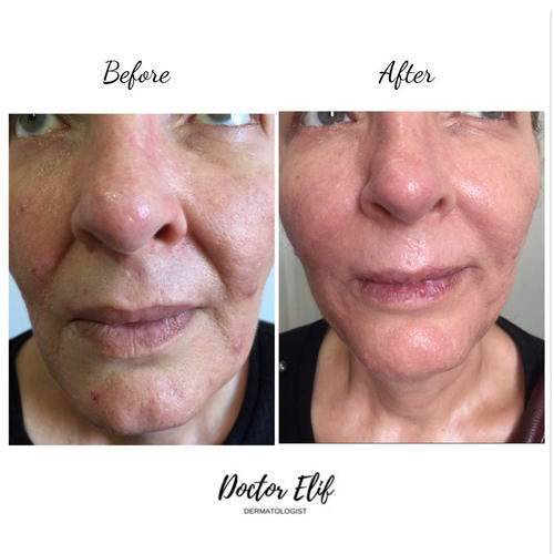 VAMPIRE FACIAL before after